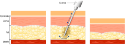 Liposuction at the cellular level