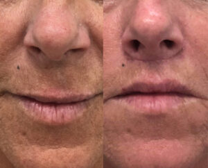 Lip lifting before and after