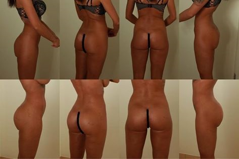 Advice For Breast Surgery Recovery