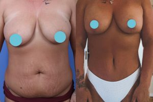 Tummy tuck + Breast lift with implants + Liposuction