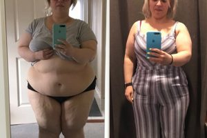Bariatric-surgery-before-and-after10
