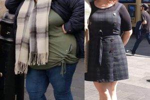 Bariatric-surgery-before-and-after16