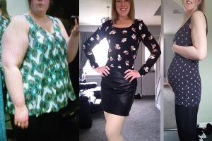 Bariatric-surgery-before-and-after18