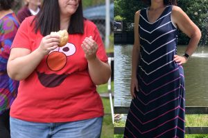 Bariatric-surgery-before-and-after3