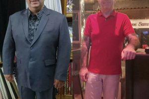 Bariatric-surgery-before-and-after4