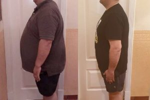 Bariatric-surgery-before-and-after7