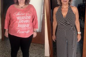 Bariatric-surgery-before-and-after8