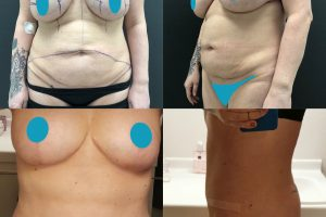 Tummy tuck + flanks liposuction +breast implants removal + breast lift