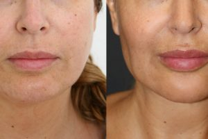 Chin liposuction + buccal fat pad removal