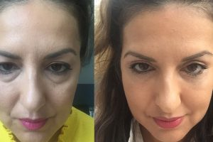 Eyelid surgery + Chin liposuction + Fat transfer to face