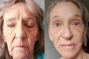 Facelift + Fat transfer to face + Brow lift