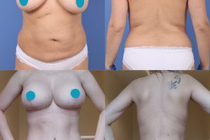 Tummy tuck + Breast lift + Breast enlargement + Liposuction