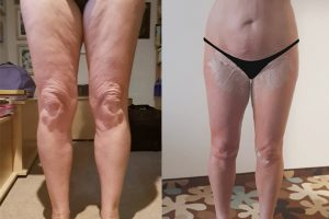 Knee liposuction + Thigh lift