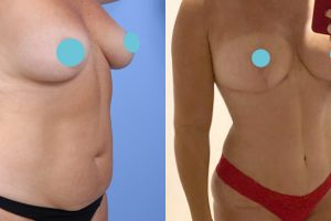 Breast reduction + Tummy tuck