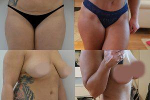 Fettabsaugung am Taille und Bauchstraffung