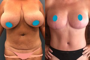 Tummy tuck + waist liposuction + breast reduction