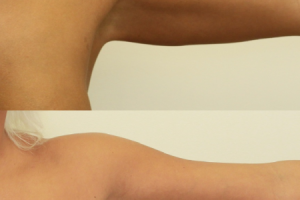 arm-lift-before-after-photo-3.png