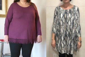 bariatric-before-after-5