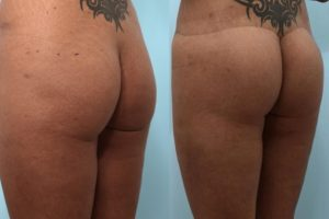 buttock-lift-before-after-photo-1.jpg